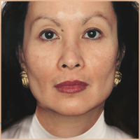 Asian woman with Acne Scarring Pigmentation and Spots