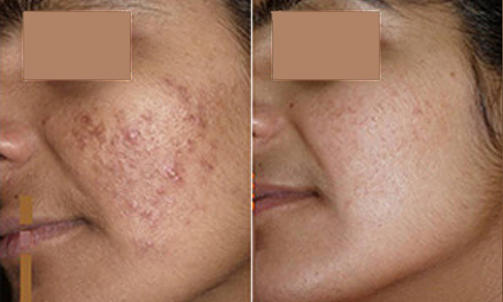 Acne Scarring and Whiteheads