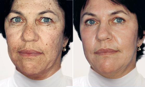 Skin Rejuvenation - Dermanoir - Ethnic Skin Specialists™