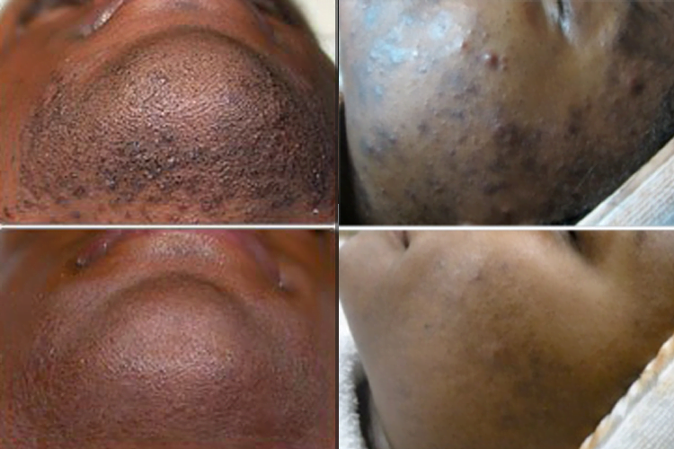 Hyperpigmentation and Laser Hair Reduction Treatments