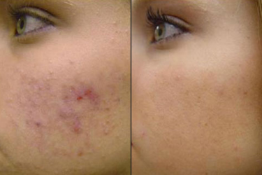 Acne, Scarring and Blemishes