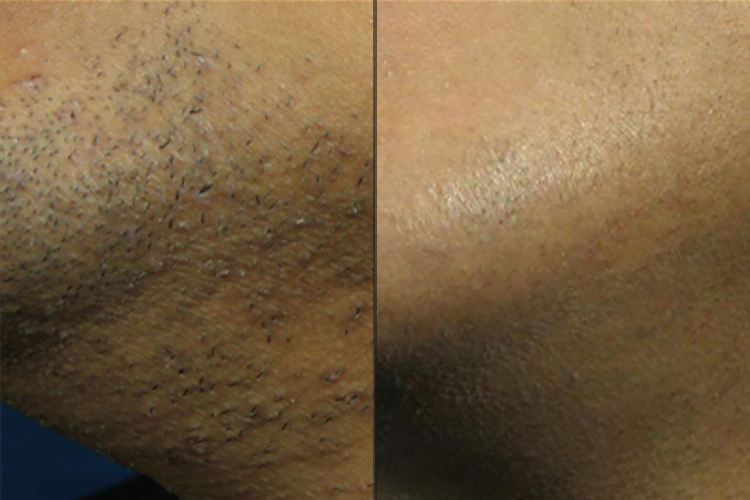 Laser Hair Removal on Darker Skin Types