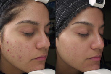Acne and Whiteheads on Asian skin