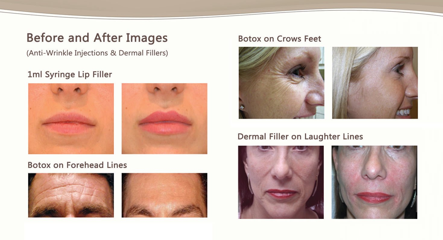 Botox (anti-wrinkle injections) and Dermal Fillers Lip Enhancements Facelift