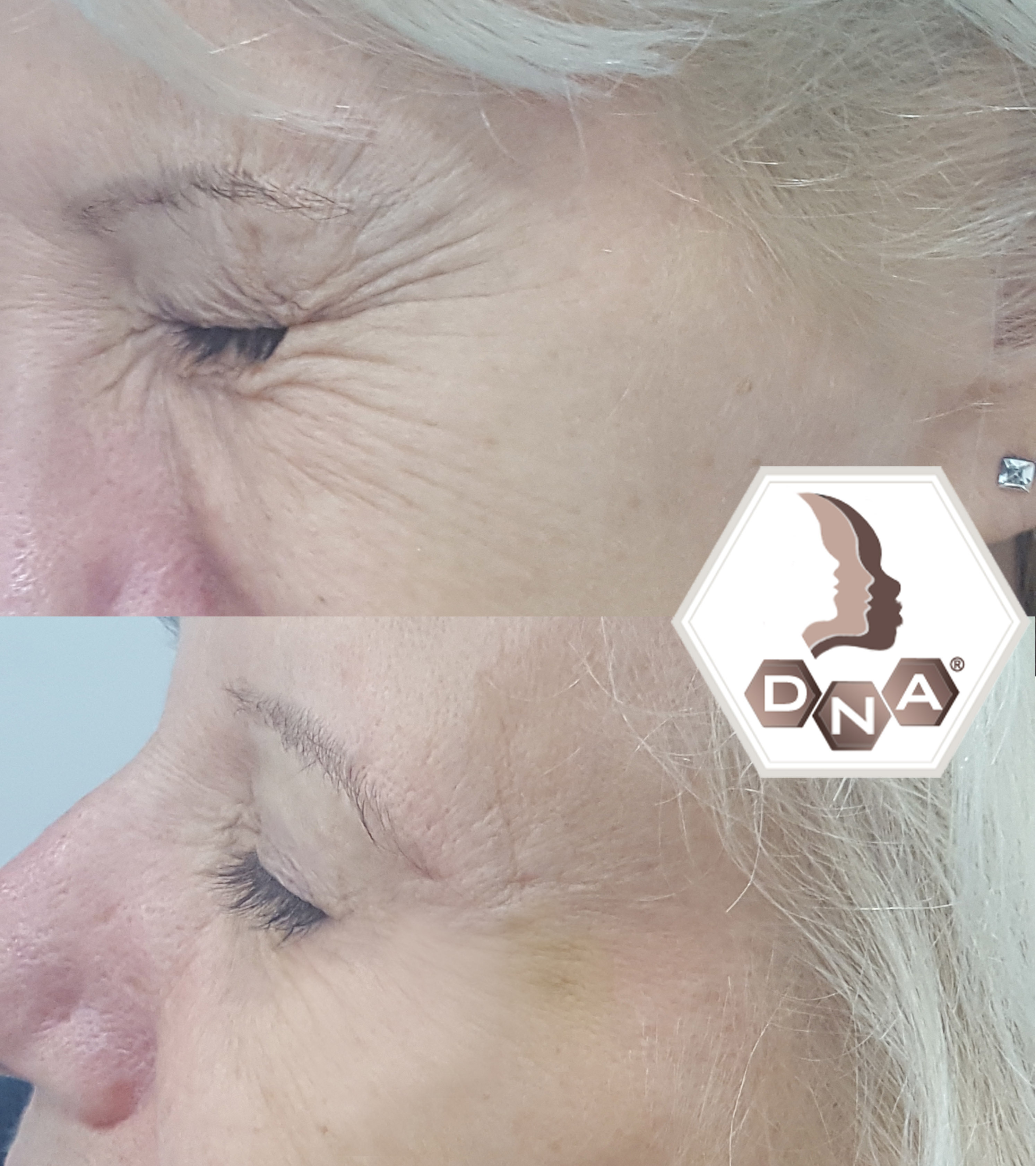 Botox (anti-wrinkle injections) and Dermal Fillers cheek, Lip Enhancements Facelift
