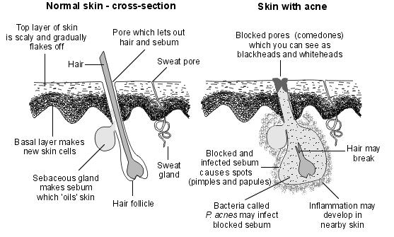 Acne Diagram