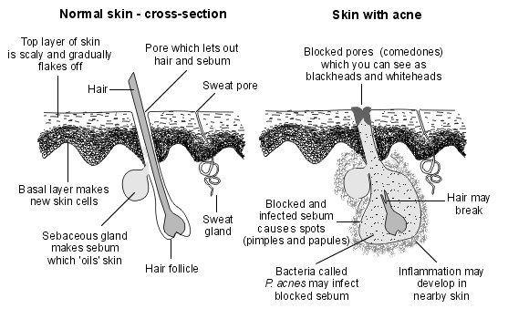 Acne Diagram