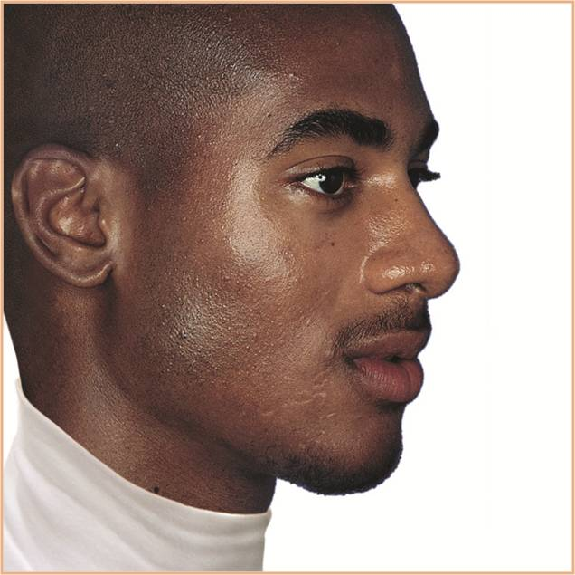 African (Afro-Caribbean) male with acne scarring and hyperpigmentation