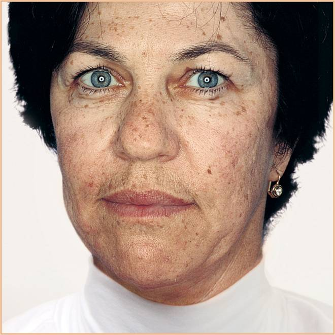 Caucasian white lady with age spots, acne, scarring and pigmentation as well as black heads