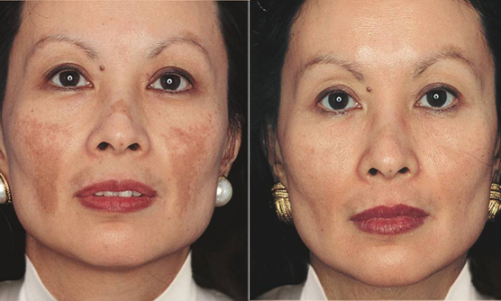 Pigmentation and Hyperpigmentation in Ethnic Skin