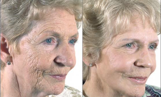 Wrinkle and Anti-Ageing Treatments at Dermanoir - Ethnic Skin Specialists™