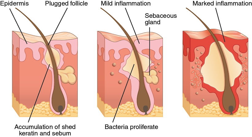 Acne Hyperpigmentation pigmentation dark marks blemishes dark patches spots pimples rash skin conditions